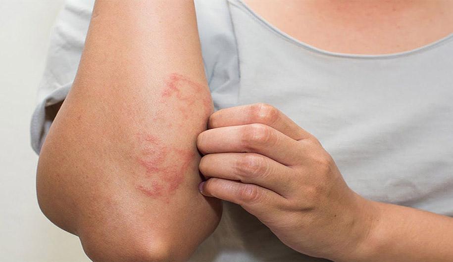 Dr.Abidi-hives|نسخۀ کهیر را در چند دقیقه بپیچید