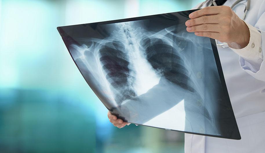 Pneumonia/ذات الریه