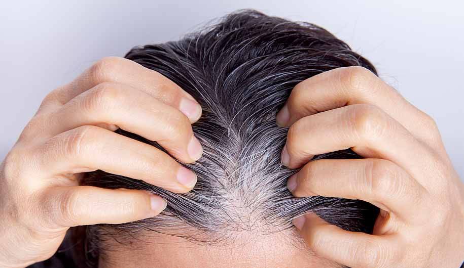 Dr.Abidi.علت موی سفید/The-cause-of-white-hair
